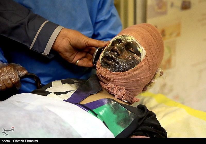 رشت، انفجار مواد محترقه در آپارتمان مسکونی و مصدومیت شدید جوان 30 ساله رشتی