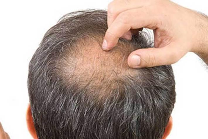 ریزش شدید مو از علائم عفونت کرونا ، تغییر روزانه علائم بالینی بیماری